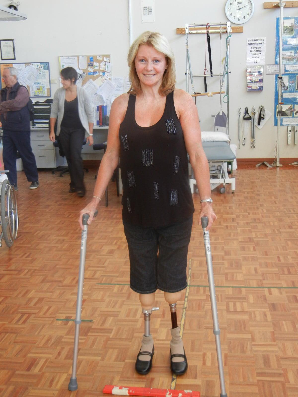 Amanda 2 bare prosthetic legs